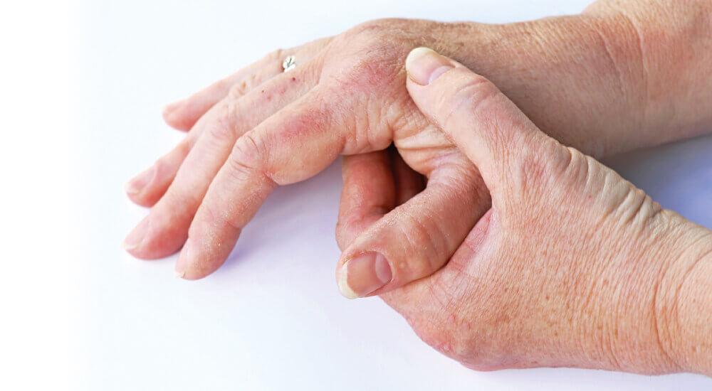 artrose tommelfinger